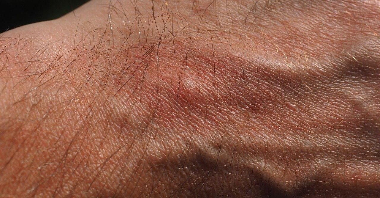 Milbenstiche auf der Haut